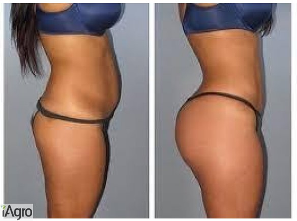 HIPS AND BUMS ENLARGEMENT CREAM AND PILLS +27605775963